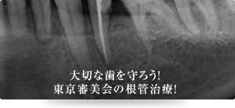 大切な歯を守ろう!東京審美会の根管治療!